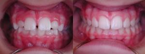 Ortodonzia_Neurosensoriale